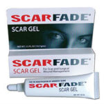ScarFade Scar Cream And Gel Review 615