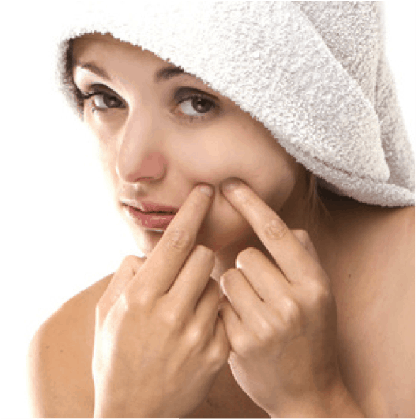 A Cure for Your Acne